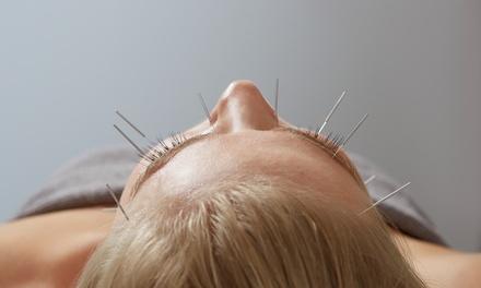 Eastern Wisdom Acupuncture Center