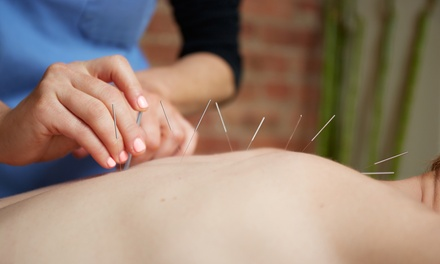 United Acupuncture