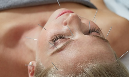 CA Clinic Acupuncture & Chiropractic Clinic