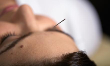 Acupuncture Connecticut