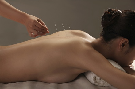 Oriental Acupuncture Wellness Center