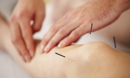 Four Seasons Acupuncture
