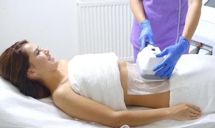 Dermalaser MD Medspa
